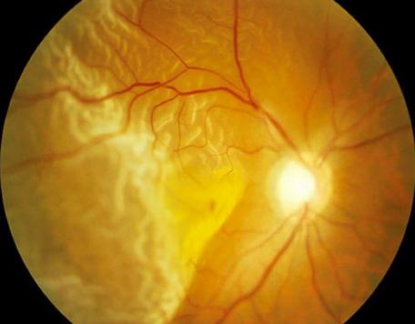 esclarecimentos sobre Descolamento de retina