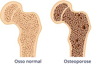 osteoporose -comparacao